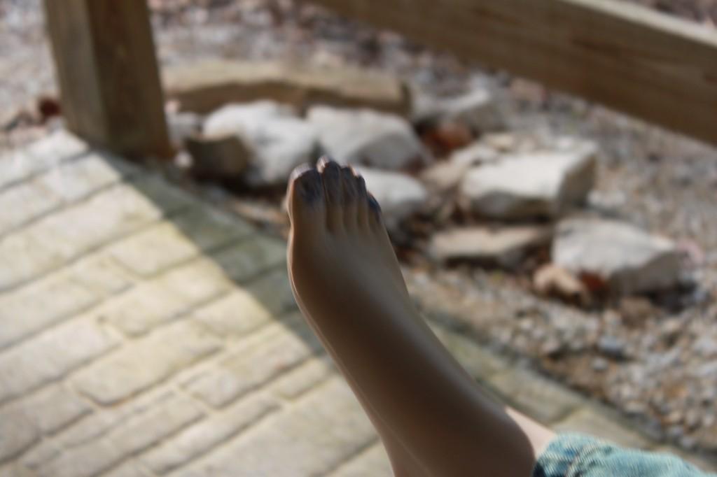Frost bit foot