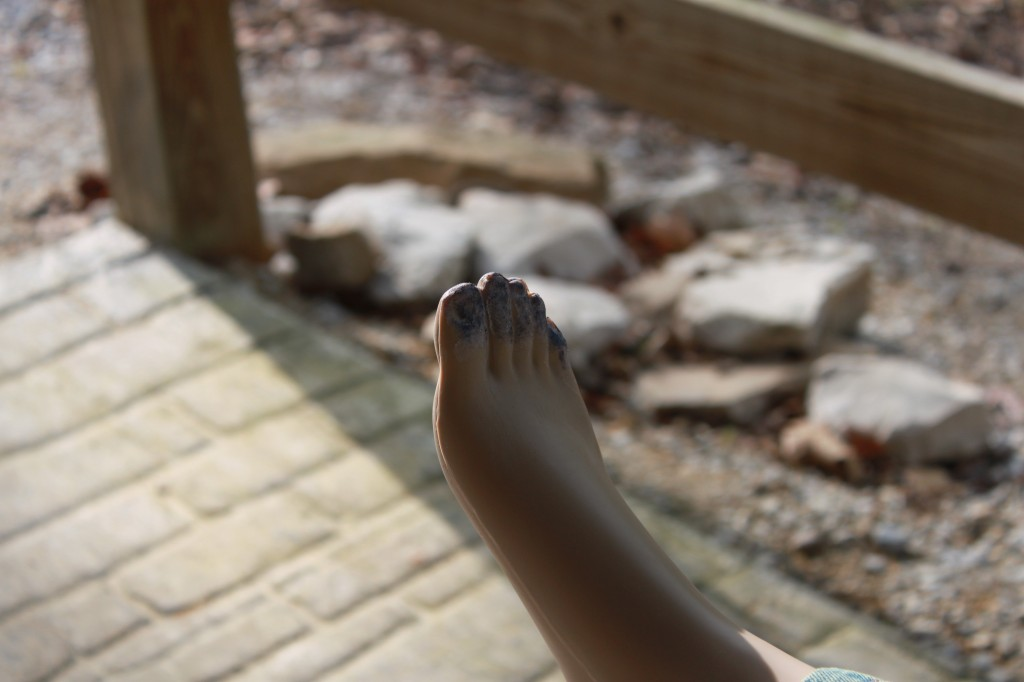 Frost bit or oxygen issues - Blue Toes