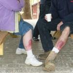 Moulage skin abrasions